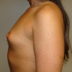 Before Photo - Breast Augmentation - Case #2647 - Lateral View