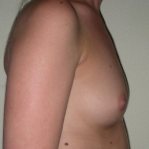 Before Photo - Breast Augmentation - Case #2724 - Breast Augmentation with Silicone Implants for Hypomastia - Lateral View