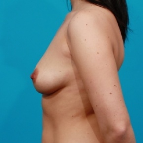 Before Photo - Breast Augmentation - Case #2471 - Saline Breast Implants - Lateral View