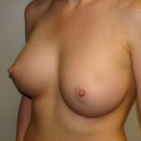 After Photo - Breast Augmentation - Case #2648 - Oblique View