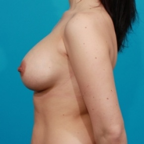 After Photo - Breast Augmentation - Case #2471 - Saline Breast Implants - Lateral View