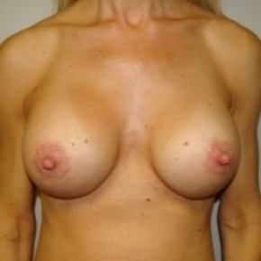 After Photo - Breast Augmentation - Case #2650 - Frontal View