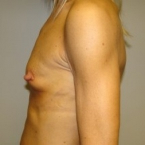 Before Photo - Breast Augmentation - Case #2650 - Lateral View