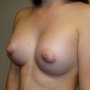 After Photo - Breast Augmentation - Case #2651 - Oblique View