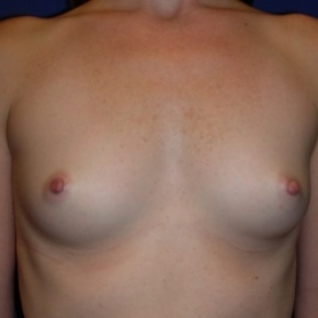 Before Photo - Breast Augmentation - Case #2727 - Breast Enlargement with Silicone Implants - Frontal View