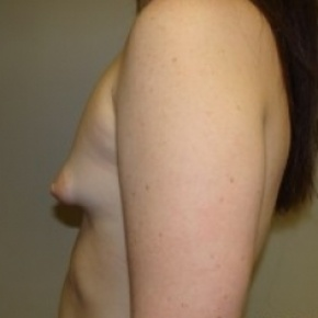 Before Photo - Breast Augmentation - Case #2651 - Lateral View