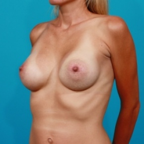 After Photo - Breast Augmentation - Case #2653 - Breast Augmentation - Silicone Implants - Oblique View