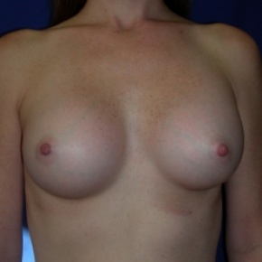 After Photo - Breast Augmentation - Case #2727 - Breast Enlargement with Silicone Implants - Frontal View