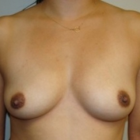 Before Photo - Breast Augmentation - Case #2655 - Frontal View