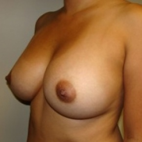 After Photo - Breast Augmentation - Case #2655 - Oblique View