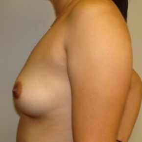 Before Photo - Breast Augmentation - Case #2655 - Lateral View