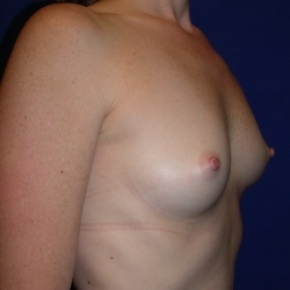 Before Photo - Breast Augmentation - Case #2727 - Breast Enlargement with Silicone Implants - Lateral View