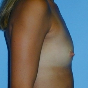 Before Photo - Breast Augmentation - Case #2589 - Saline Breast Implants - Oblique View