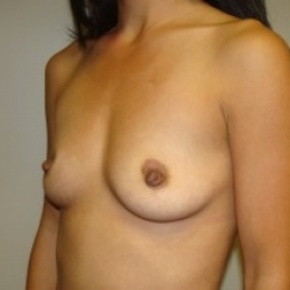 Before Photo - Breast Augmentation - Case #2656 - Oblique View