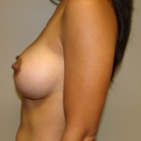 After Photo - Breast Augmentation - Case #2656 - Lateral View