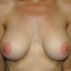 After Photo - Breast Augmentation - Case #2657 - Frontal View