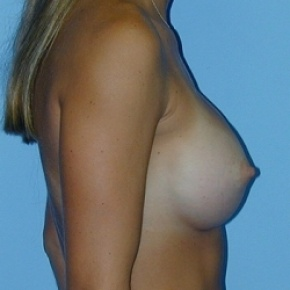 After Photo - Breast Augmentation - Case #2589 - Saline Breast Implants - Oblique View