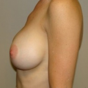 After Photo - Breast Augmentation - Case #2657 - Lateral View