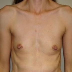 Before Photo - Breast Augmentation - Case #2658 - Frontal View