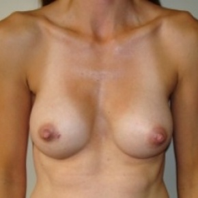 After Photo - Breast Augmentation - Case #2658 - Frontal View