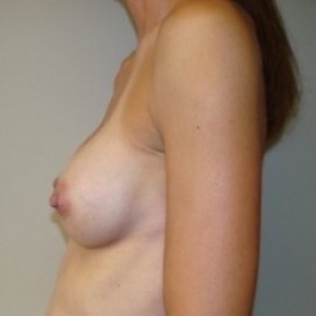 After Photo - Breast Augmentation - Case #2658 - Lateral View