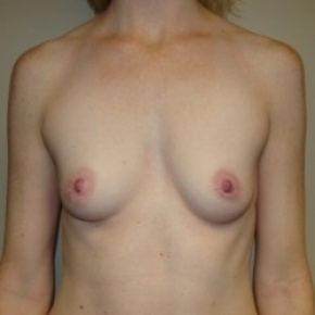Before Photo - Breast Augmentation - Case #2659 - Frontal View