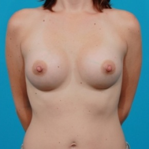 After Photo - Breast Augmentation - Case #2472 - Silicone Breast Implants - Frontal View