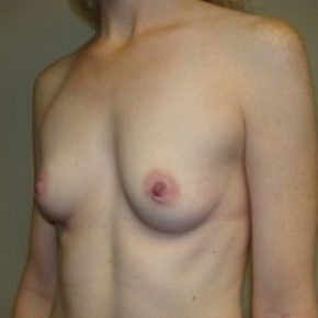 Before Photo - Breast Augmentation - Case #2659 - Oblique View