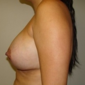 After Photo - Breast Augmentation - Case #2660 - Lateral View