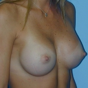 After Photo - Breast Augmentation - Case #2589 - Saline Breast Implants - Lateral View