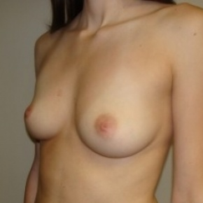 Before Photo - Breast Augmentation - Case #2662 - Oblique View