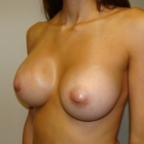 After Photo - Breast Augmentation - Case #2662 - Oblique View
