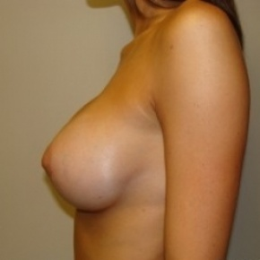 After Photo - Breast Augmentation - Case #2662 - Lateral View