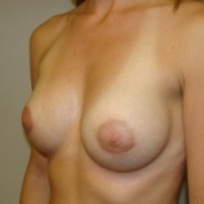 After Photo - Breast Augmentation - Case #2663 - Oblique View