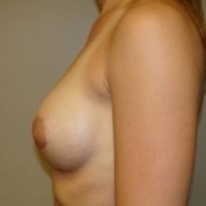 After Photo - Breast Augmentation - Case #2663 - Lateral View