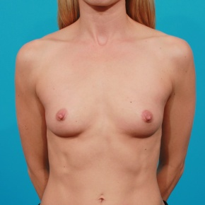 Before Photo - Breast Augmentation - Case #2664 - Silicone Breast Implants - Frontal View