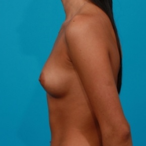 Before Photo - Breast Augmentation - Case #2468 - Saline Breast Implants - Lateral View