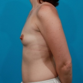 Before Photo - Breast Augmentation - Case #2472 - Silicone Breast Implants - Lateral View