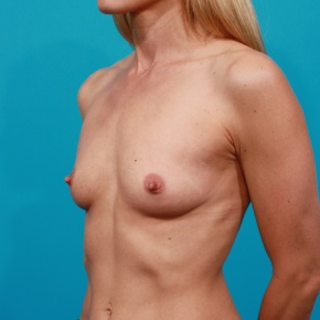 Before Photo - Breast Augmentation - Case #2664 - Silicone Breast Implants - Oblique View