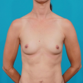 Before Photo - Breast Augmentation - Case #2672 - High Profile Gel Implants - Frontal View