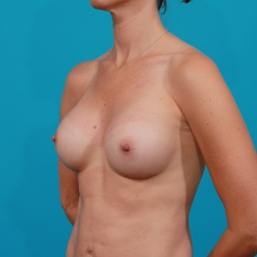 After Photo - Breast Augmentation - Case #2672 - High Profile Gel Implants - Oblique View