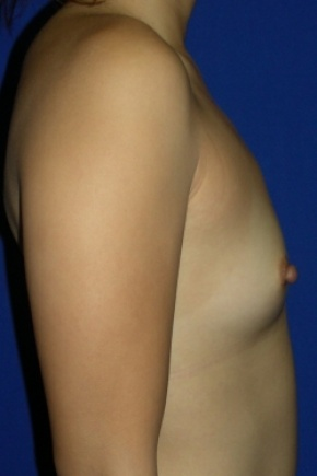 Before Photo - Breast Augmentation - Case #2728 - Breast Enlargement with Silicone Implants - Lateral View