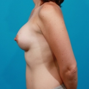 After Photo - Breast Augmentation - Case #2472 - Silicone Breast Implants - Lateral View