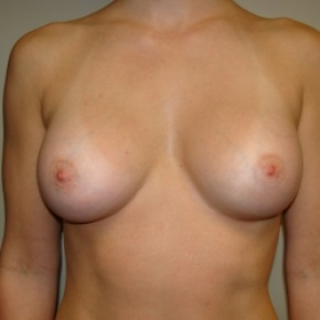 After Photo - Breast Augmentation - Case #2677 - Frontal View