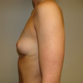 Before Photo - Breast Augmentation - Case #2677 - Lateral View