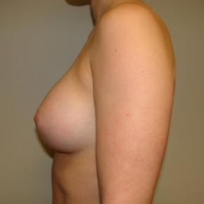 After Photo - Breast Augmentation - Case #2677 - Lateral View