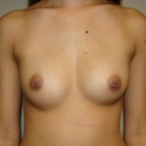 Before Photo - Breast Augmentation - Case #2678 - Frontal View
