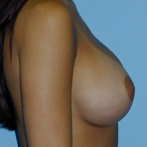 After Photo - Breast Augmentation - Case #2590 - Saline Breast Implants - Oblique View
