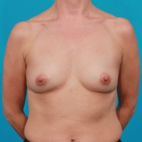 Before Photo - Breast Augmentation - Case #2473 - Silicone Breast Augmentation - Frontal View