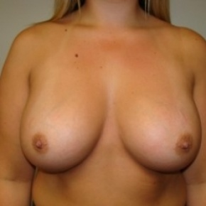 After Photo - Breast Augmentation - Case #2680 - Frontal View